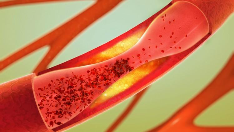 Novel-fungi-extract-could-help-to-treat-coronary-artery-diseases-Taiwanese-study_wrbm_large